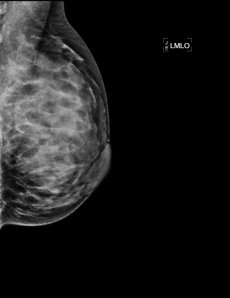 My first mammogram!